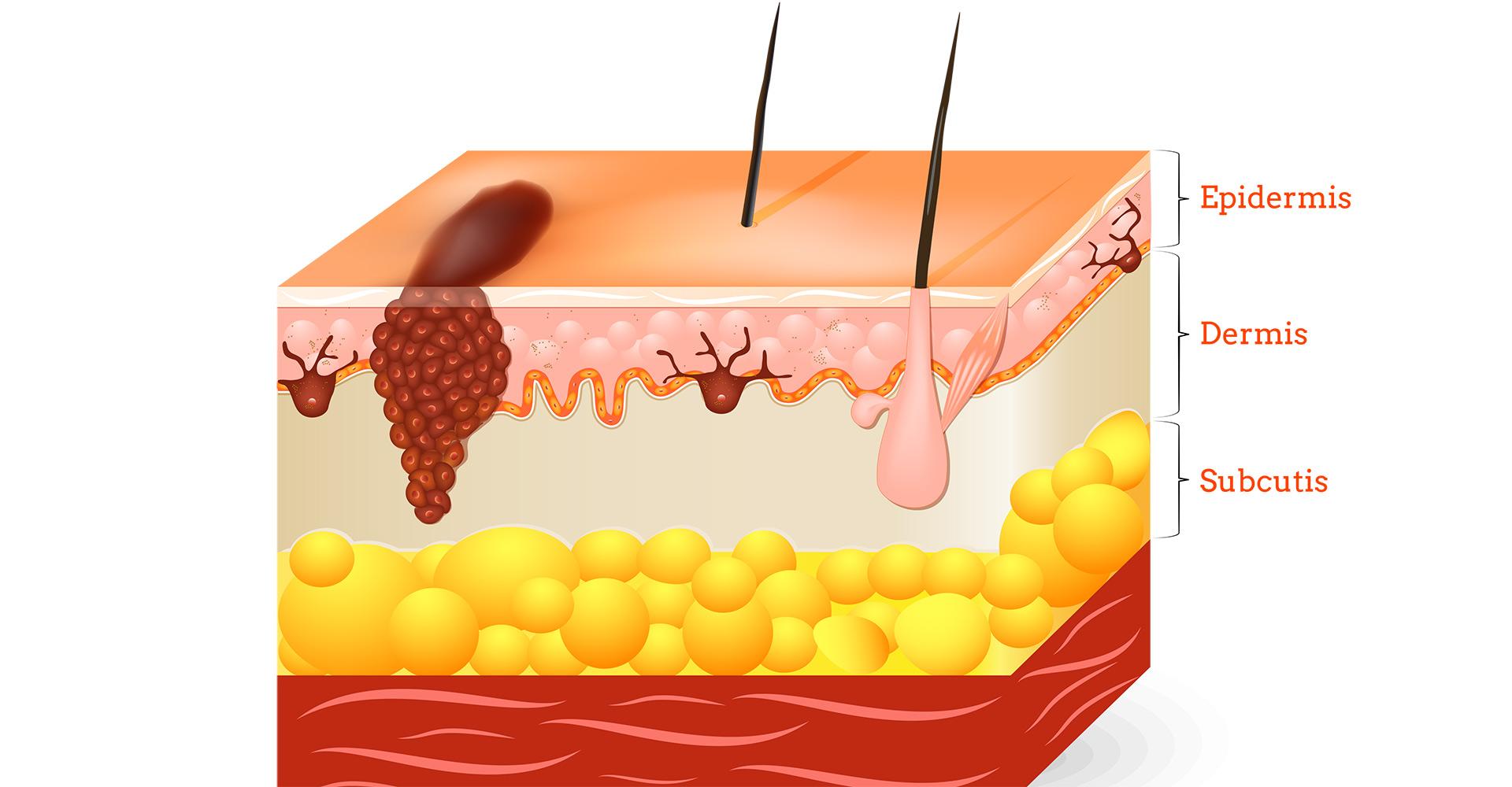 LKZ Aufbau der Haut